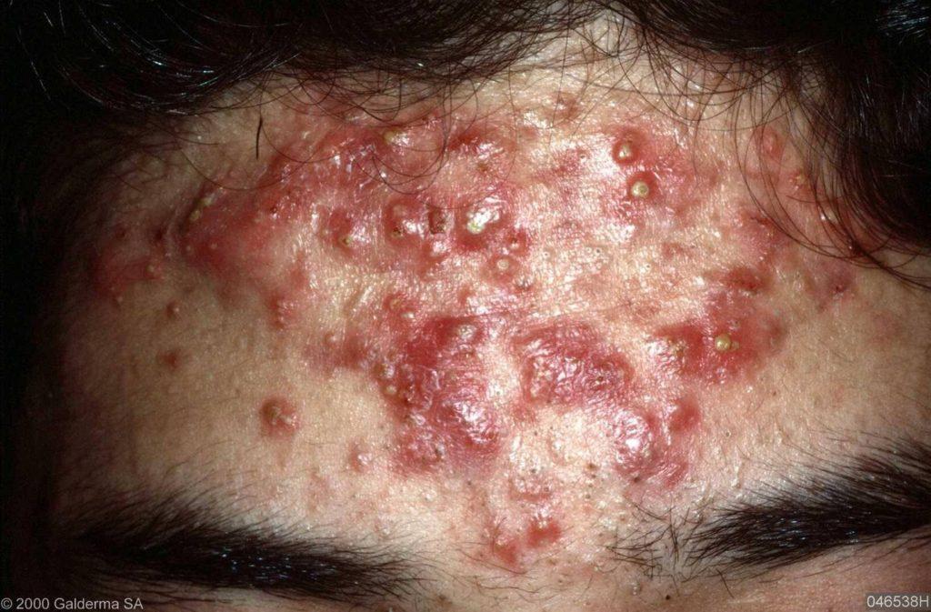 acne conglobata behandeling