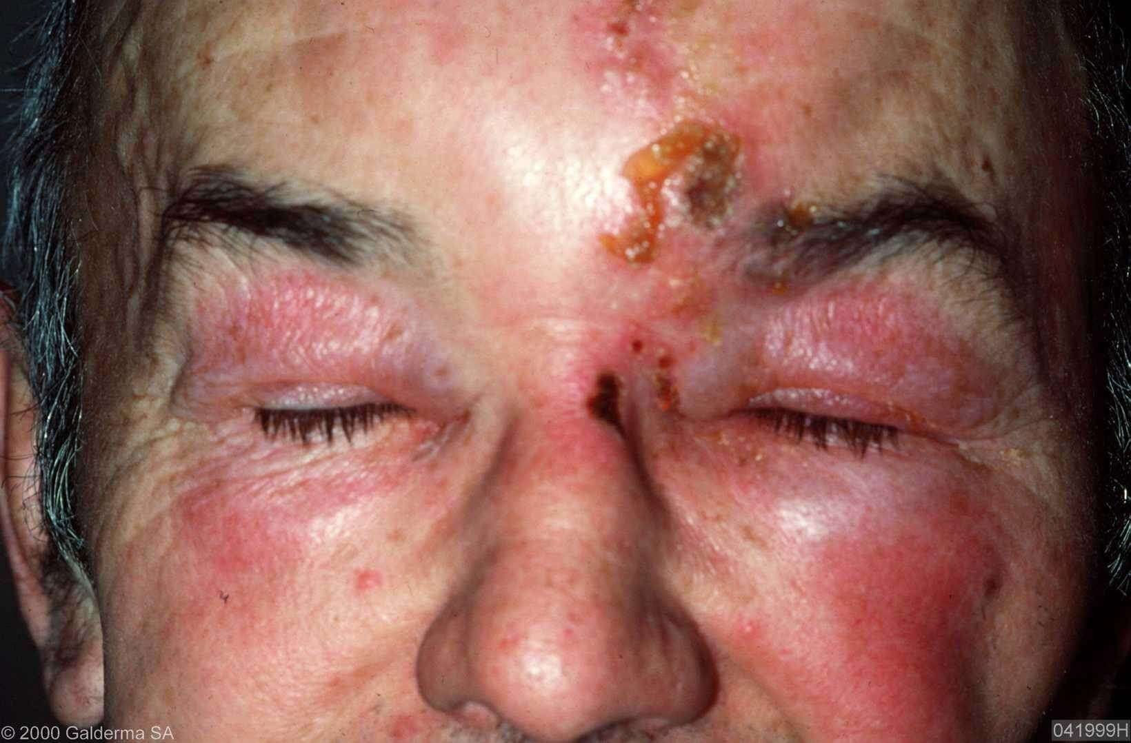 Gordelroos rondom het linker oog