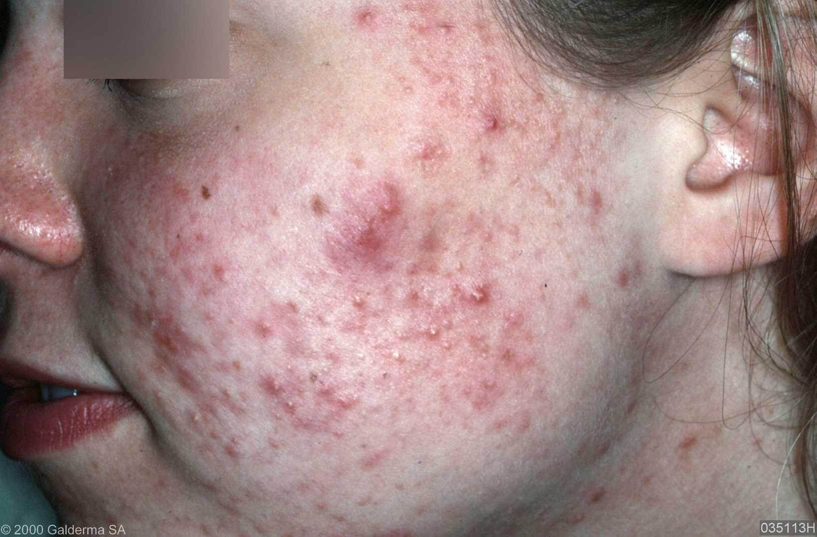 acne vulgaris behandeling