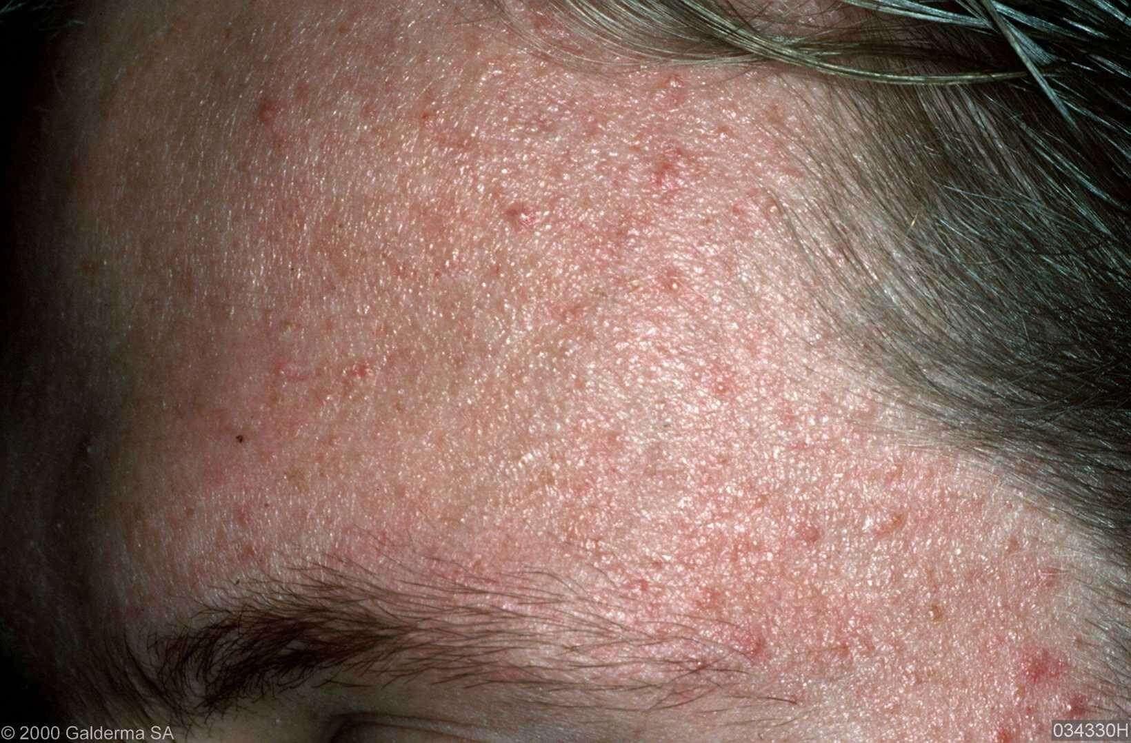 acne op oudere leeftijd