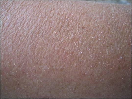 dunne huid