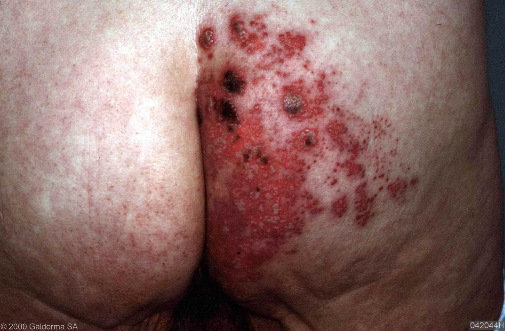 Scheide herpes der zoster in Signs and