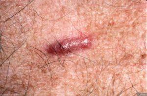 Hypertrofische litteken