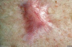 Keloid litteken op de bovenrug