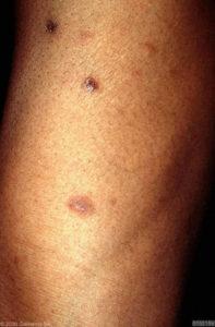 Plekjes aan het been bij donkere huid
