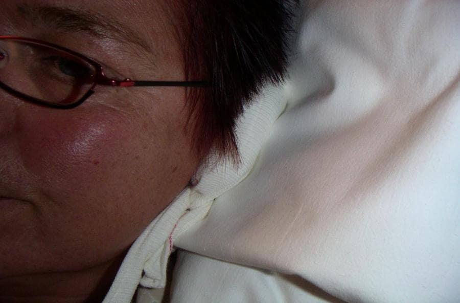 Chondrodermatitis nodularis helicis - Huidarts com