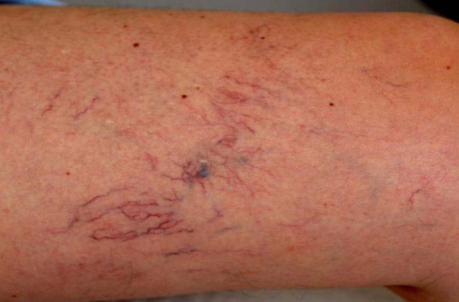 spataderen in knieholte