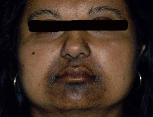 Donkere Littekens Post Inflammatoire Hyperpigmentatie Huidarts Com