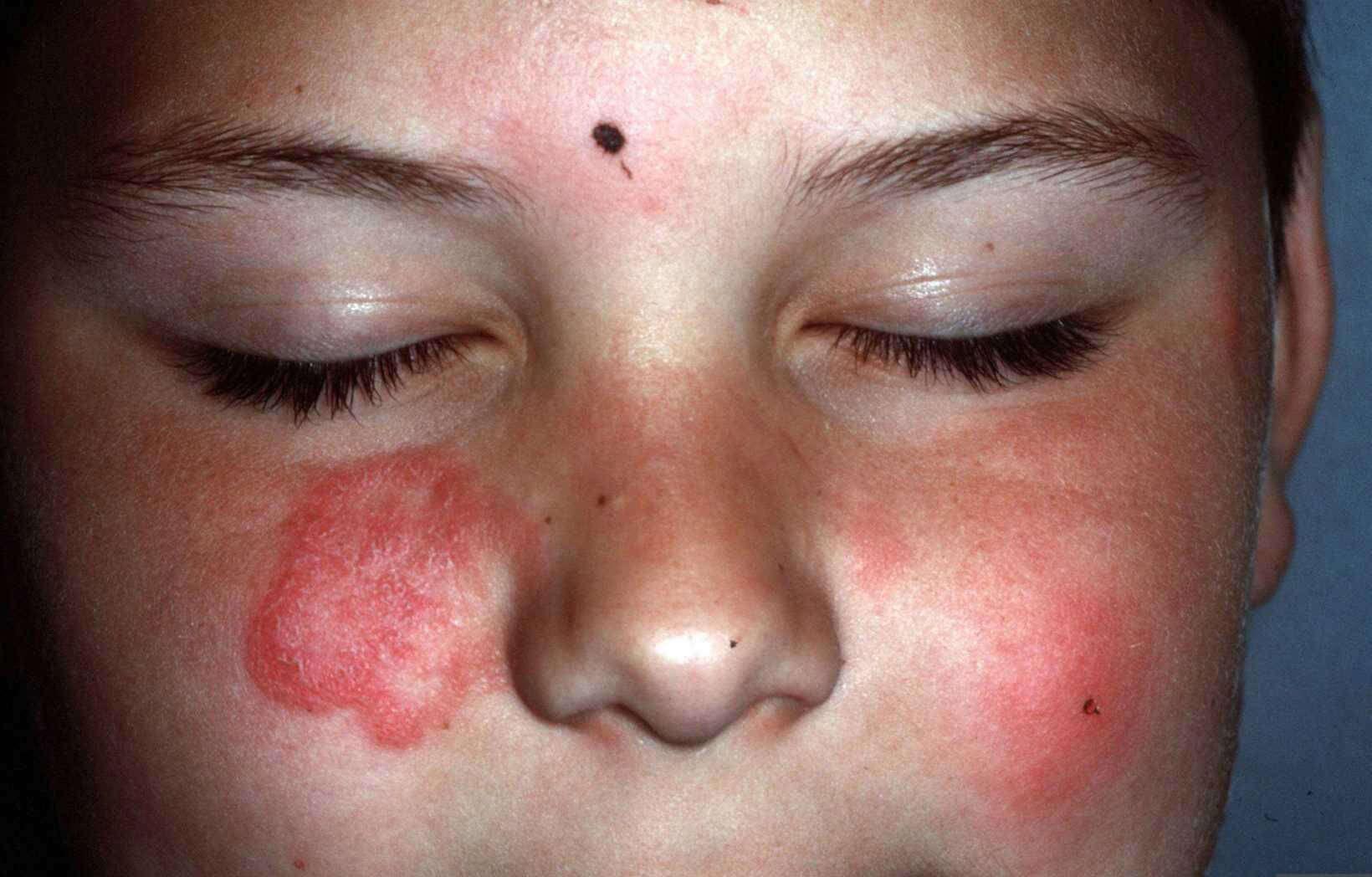 allergische reactie rode vlekken gezicht