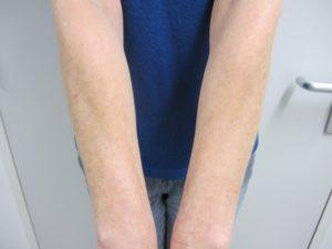 Melasma aan de onderarmen, vaker bij vrouwen na de menopauze