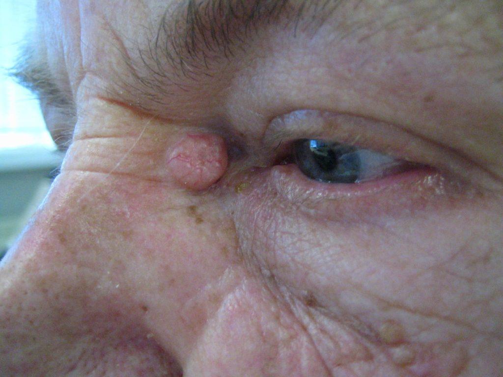 Veel voorkomend, een BCC in de ooghoek
