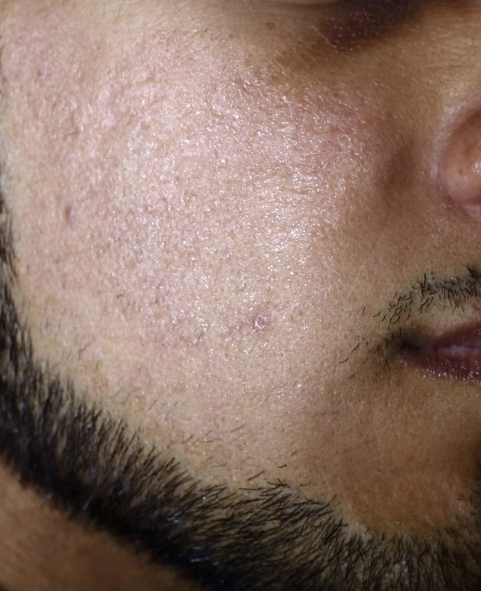 rode acne littekens
