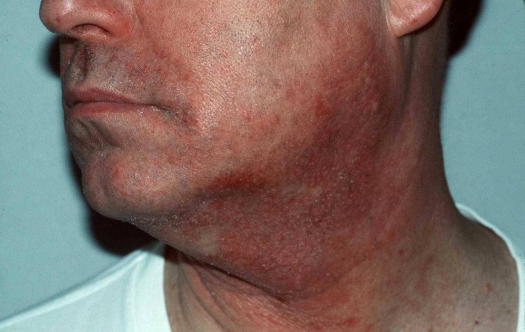 Contactallergie voor geparfumeerde after shave balsem