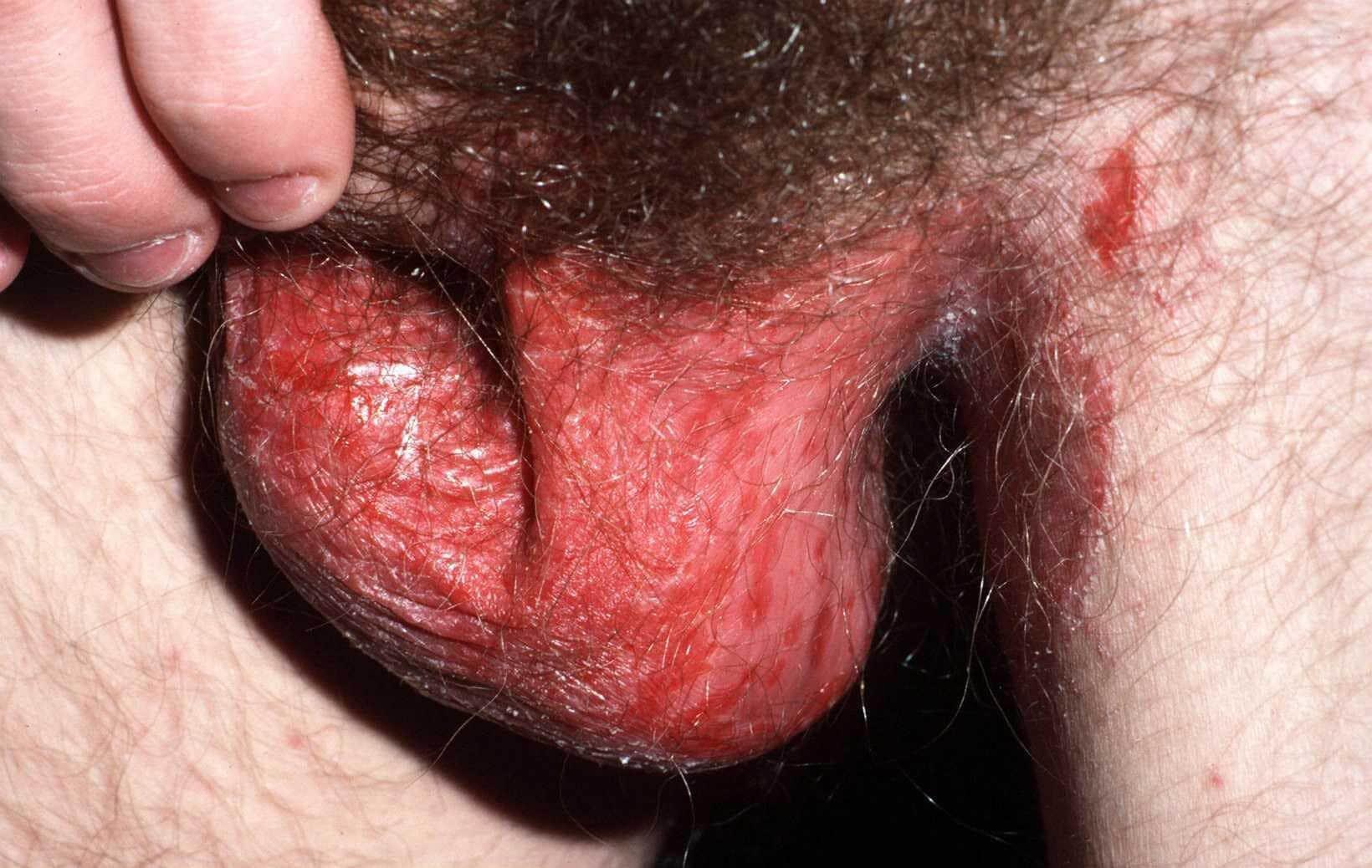 Het scrotum en de liezen zijn beiden aangedaan door psoriasis