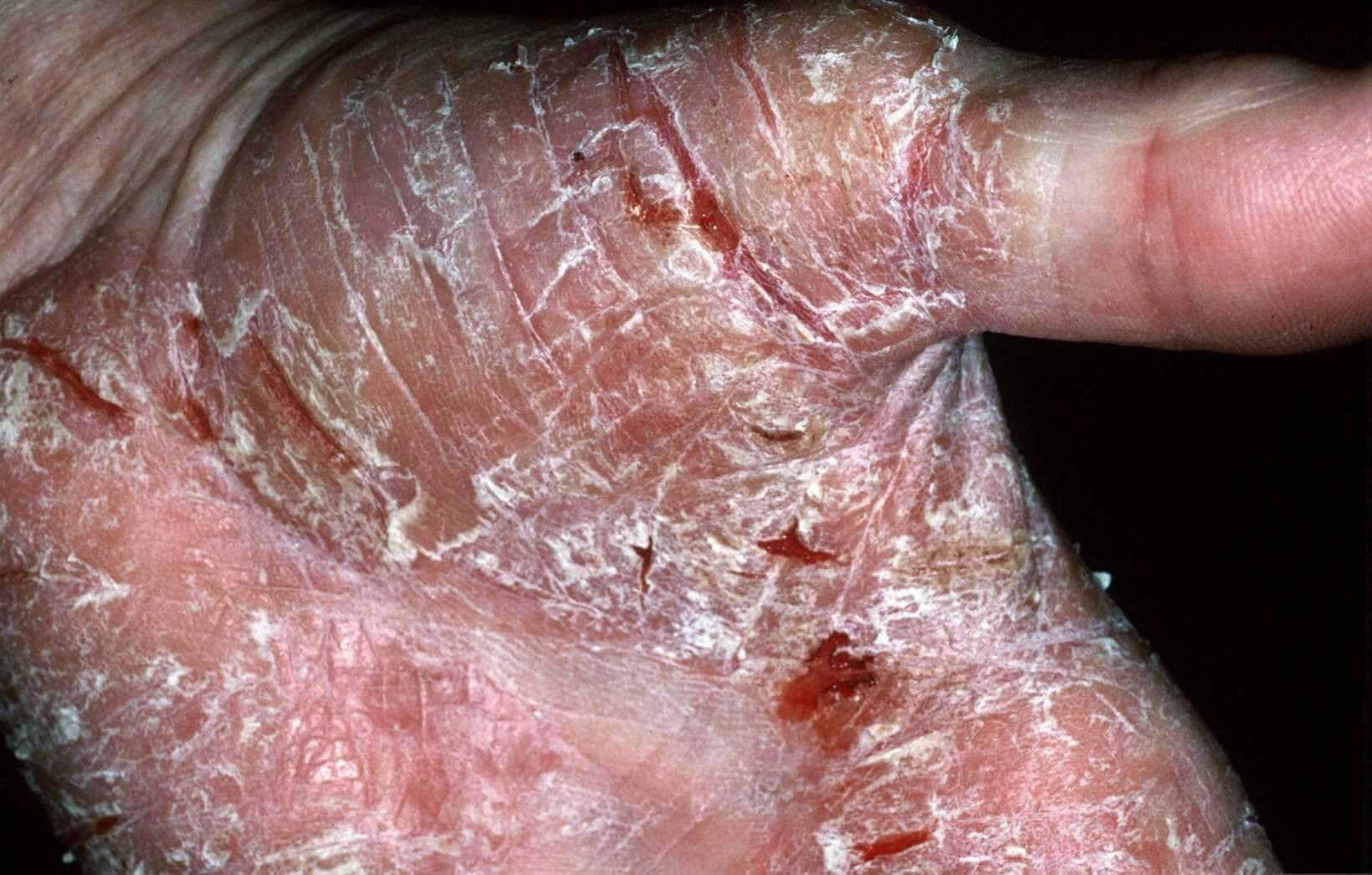 Ernstige plakkaten aan de handpalm die openscheuren en bloeden