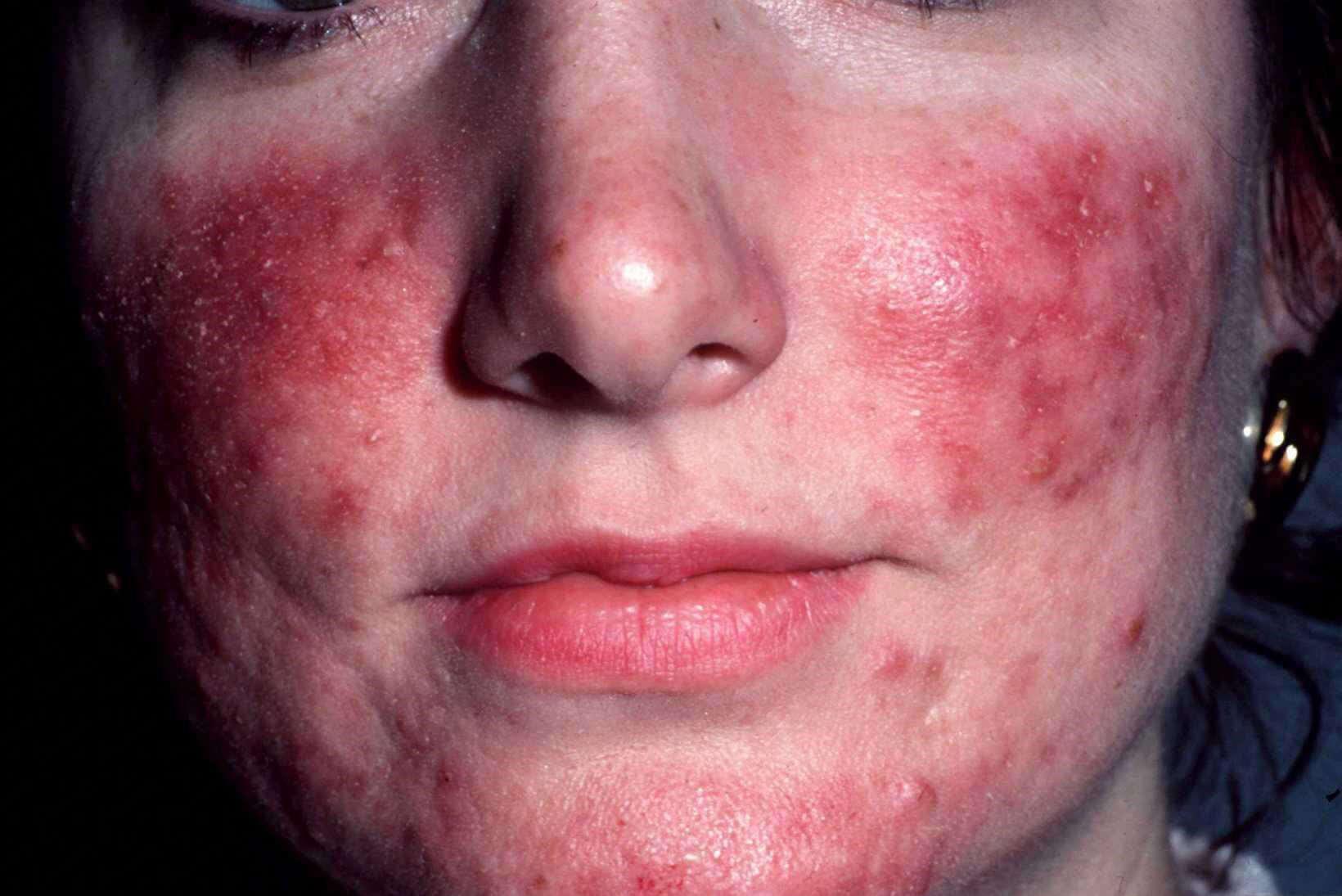 acne neus