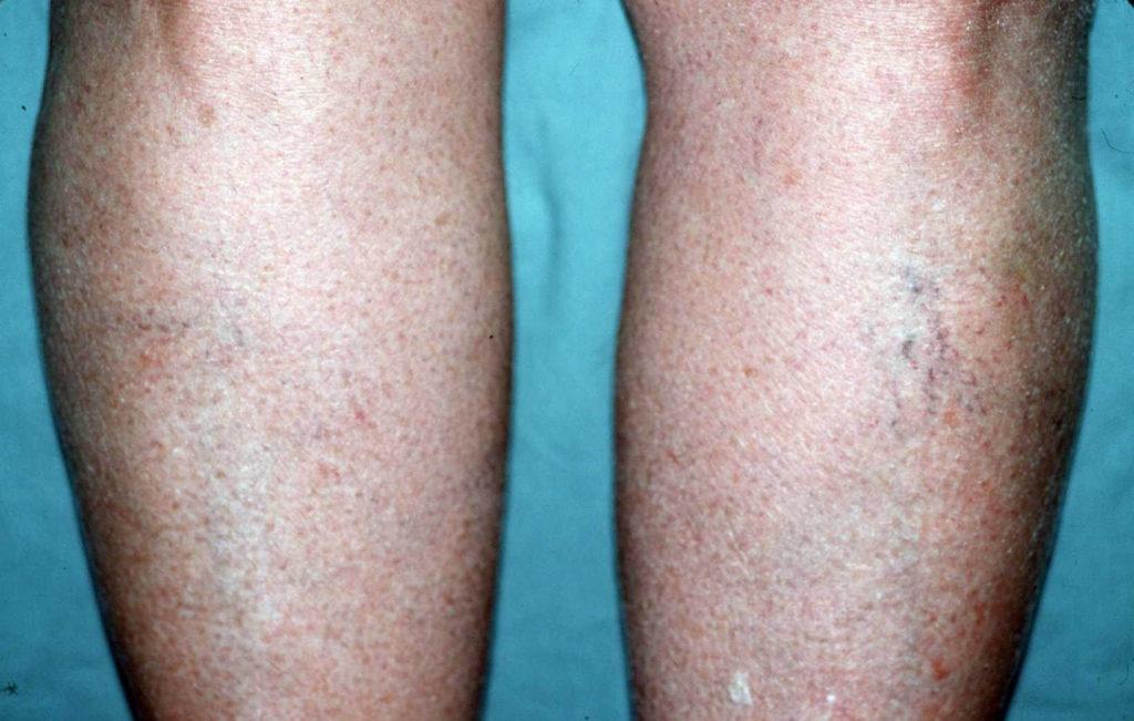 Uitdroging van de huid treedt komt vaak aan de benen voor