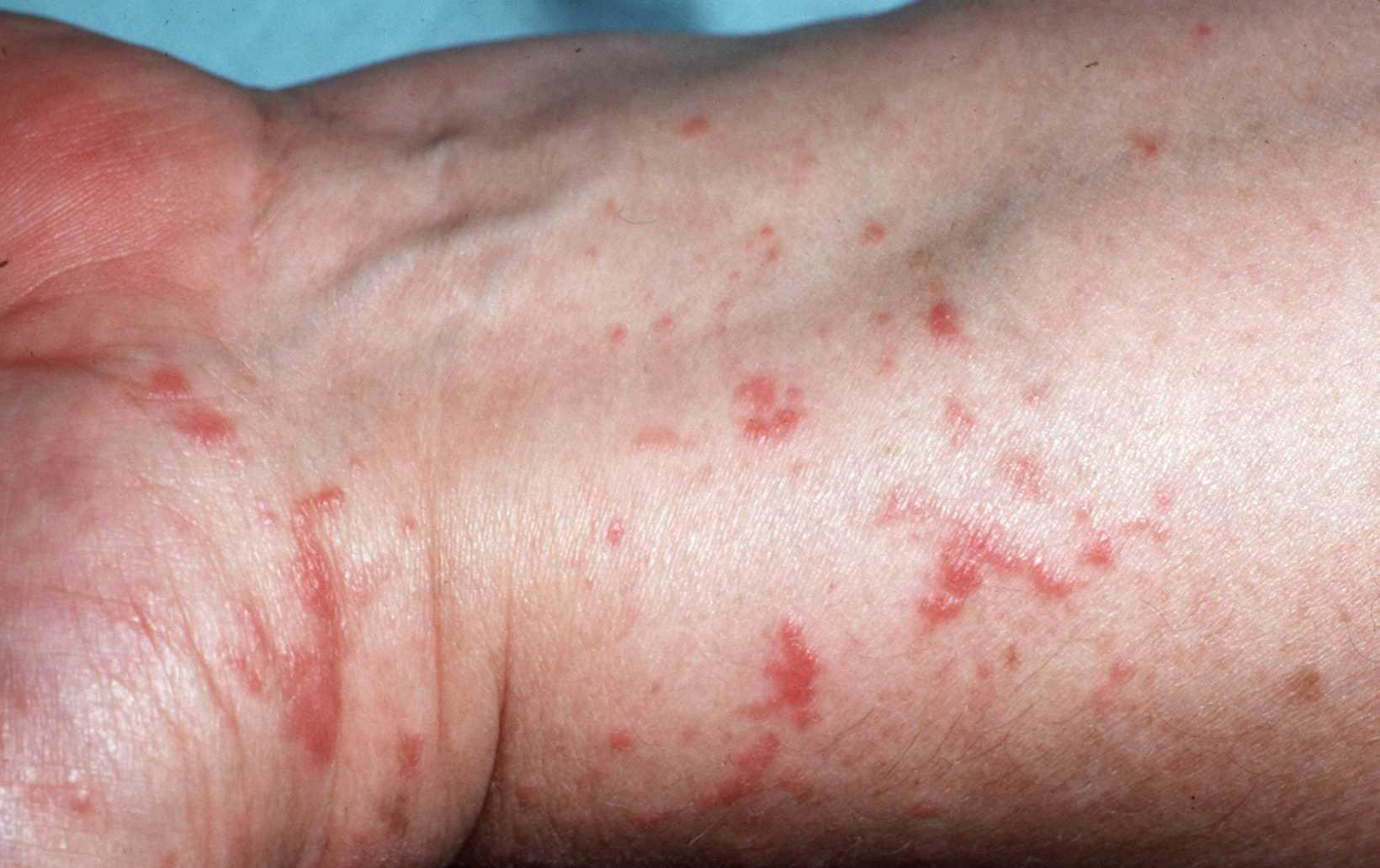 rode pukkeltjes op huid