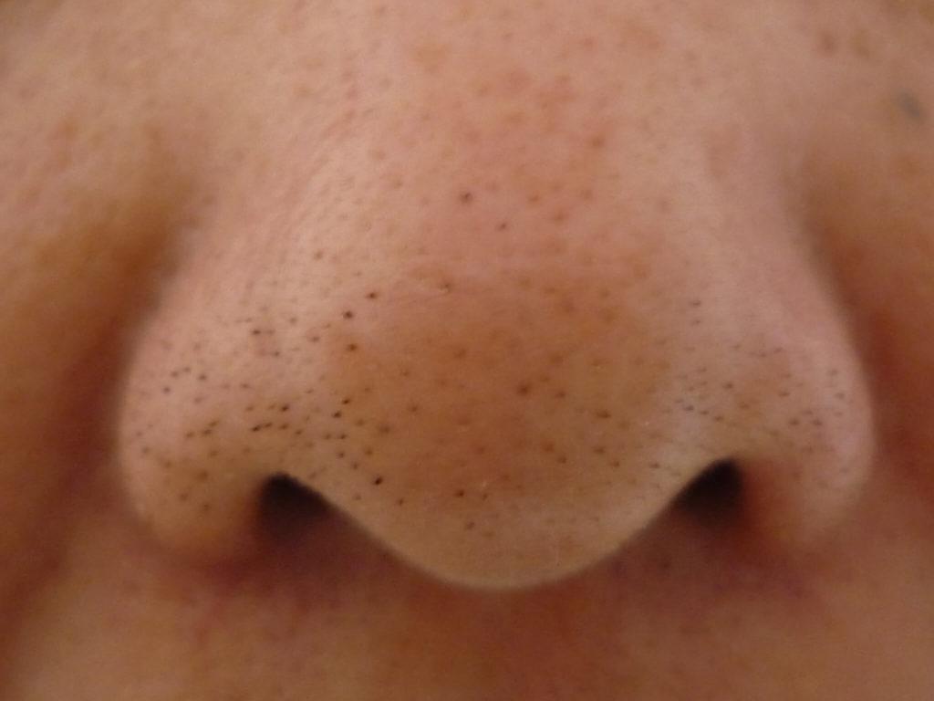 Zwarte mee-eters op de neus