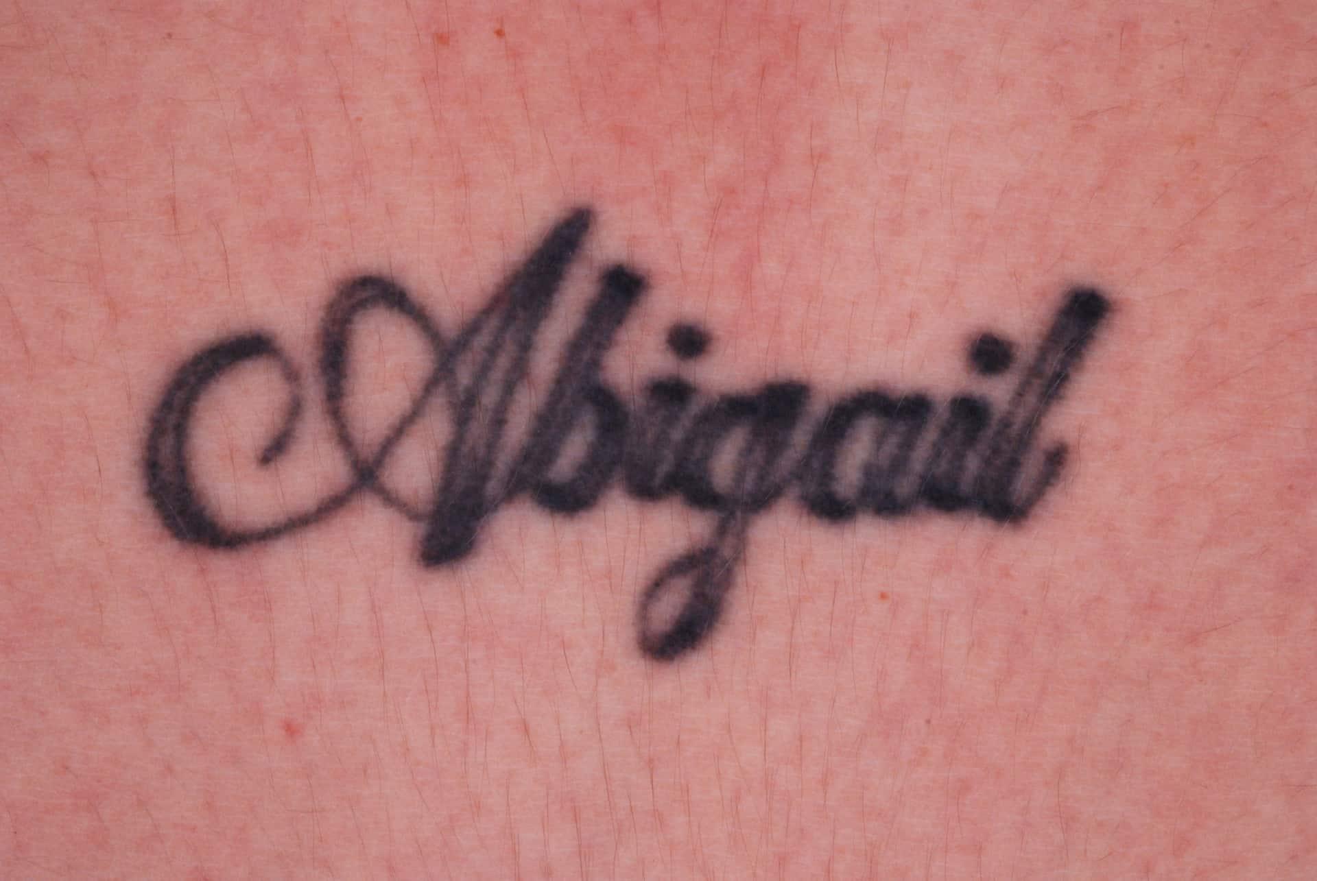 Tattoo Verwijderen Huidartscom